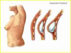 Types of Reconstruction Surgery Expander Implants